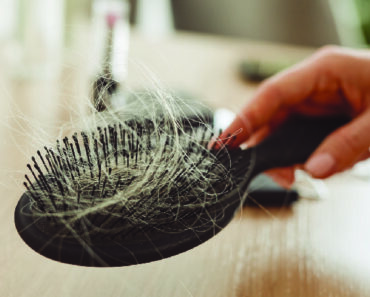 Hair Today, Hair Tomorrow: 9 Simple Techniques to Stop Hair Loss